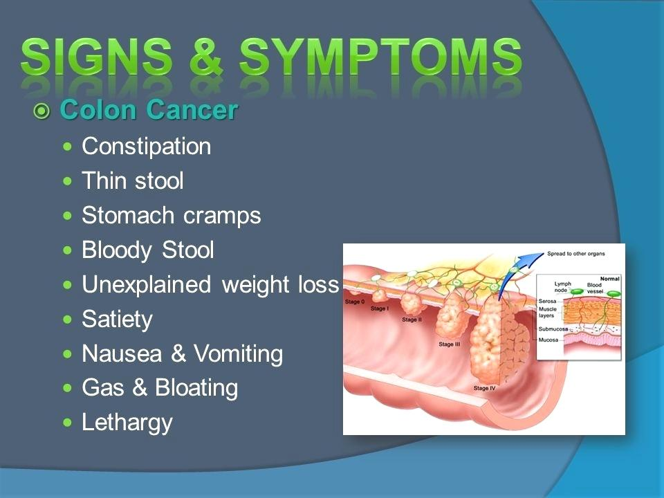 How To Colon Cleanse Why It Is Important To Detox And Remove Old Feces